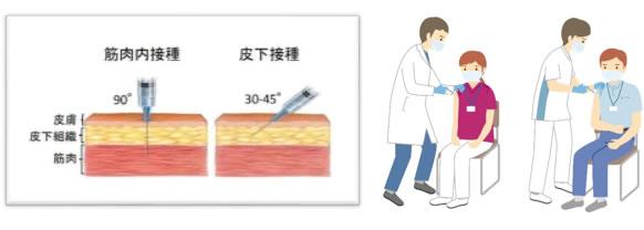筋肉内接種と皮下接種のイメージ